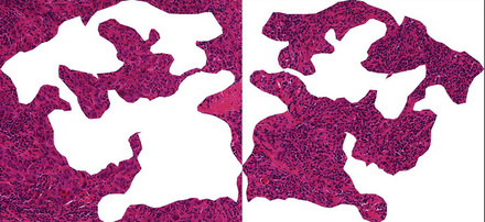 A section through breast cancer tissue: When immune cells (small dark cells) invade the tumor, breast cancer patients have good chances that chemotherapy treatment is effective. The right image shows predominantly tumor cells (round purple cells). In the left image immune cells are infiltrating the tumor. Copyright: S. Wienert, C. Denkert, Charité