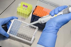Eine Hand pipettiert eine Flüssigkeit in eine Plastikplatte mit 96 Vertiefungen