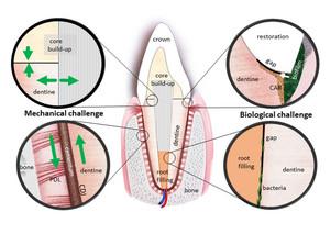 Ein restaurierter Zahn mit künstlichen und natürlichen Grenzzonen und den einwirkenden mechanischen und biologischen Einflüssen. Grafik: Zaslansky/Charité.