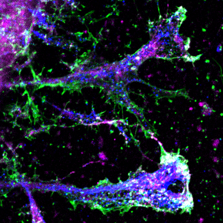 Microscopic image of astrocytes in cell culture © Charité | Kai Murk